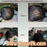 Hair Oil For Stop Hair Falling And Remove Dandruff